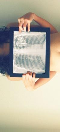 Обои рентген сердца