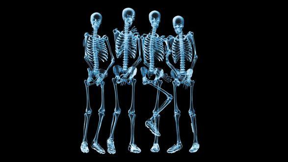 Обои Рентген четырех смущённых людей