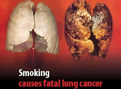 ���� Smoking causes fatal lung cancer (� Anatol), ���������: 28.06.2010 02:09