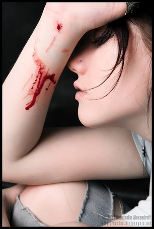 Фото Грустная девушка с кровью на запастье