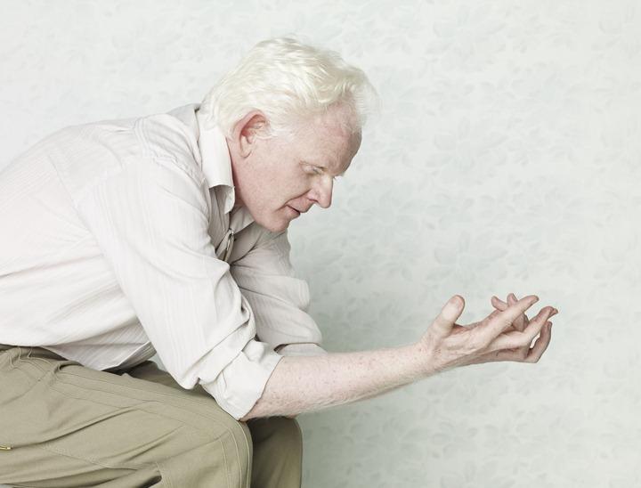 Фото Мужчина альбинос сидит и смотрит на руки
